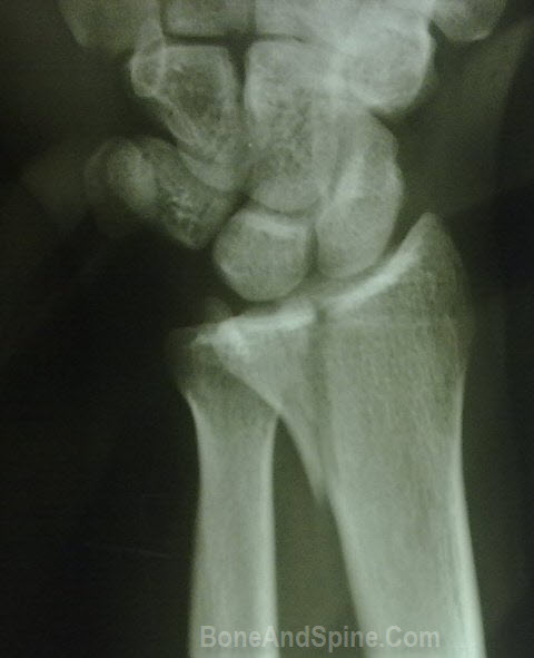 Intrarticular Vertical Fracture in Distal End Of Radius