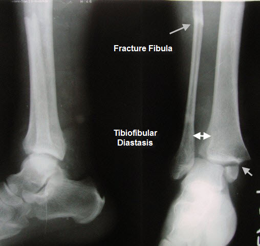 Xray of Ankle Fractures - Bimalleolar Fracture With Ankle Subluxation With Tibifibular Diastasis