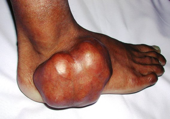 A clinical photograph of foot tumor