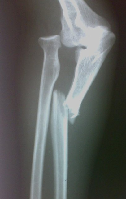 Fall on to Outstretched Hand or FOOSH Injuries | Bone and ... Ulna Bone