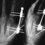 Fracture Head Second Metacarpal With Fracture Shaft of First Metacarpal Fixred With Kwire and Finger Distractor