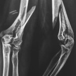 Intercondylar Fracture Of Humerus WIth Extension TO Diaphyses