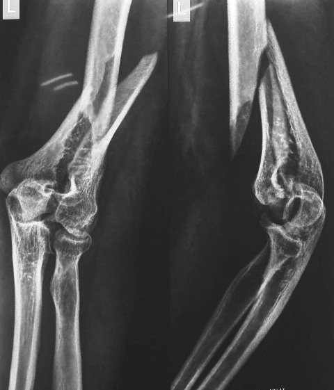 Intercondylar Fracture Of Humerus WIth Extension To Diaphysis