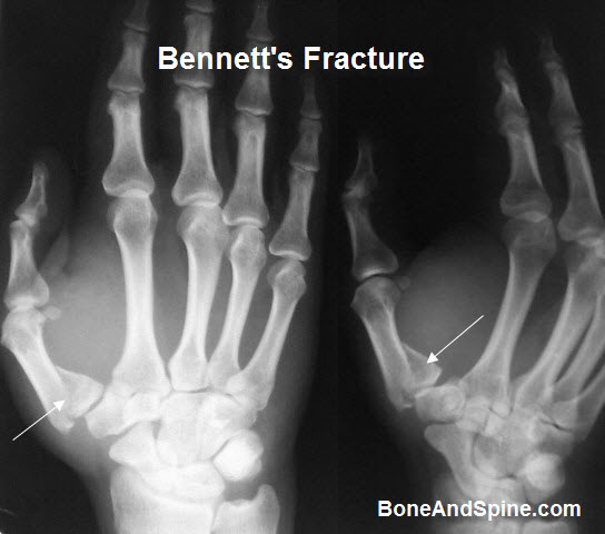 Intra-articular Fracture of First Metacarpal Base With Subluxation Of First Metacarpophalangeal Joint