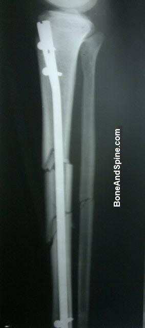 Operated Segmental Fracture Tibia