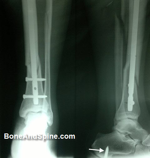 Intramedullary interlocked nail for tibia fracture