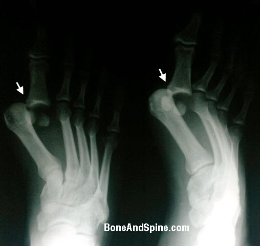 Dislocation of metatarsophalangeal joint