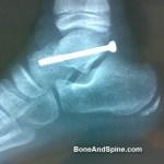 Fractures of Talus Bone