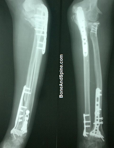 fracture upper ulna,lower ulna, radial head and radial shaft