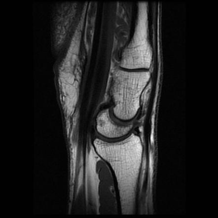 DISI MRI