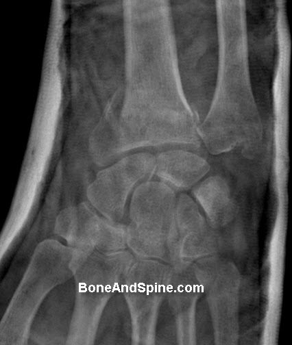 Malreduced Volar Barton Fracture In Plaster Cast - AP View