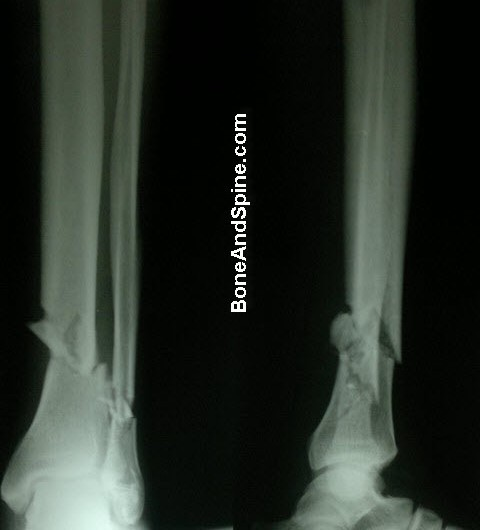 Fracture of Tibia and Fibula In Distal Part of Leg