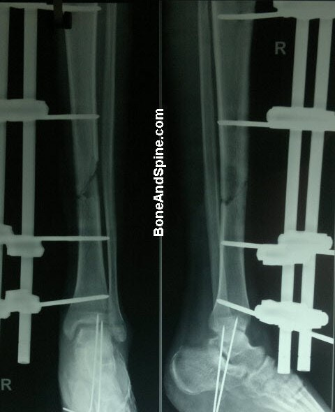 External Fixator In Tibia With Kwires In Heel