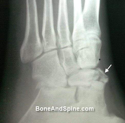 Comminuted Fracture of Navicular