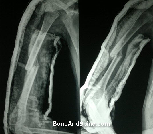 United Fracture Humerus In A Child
