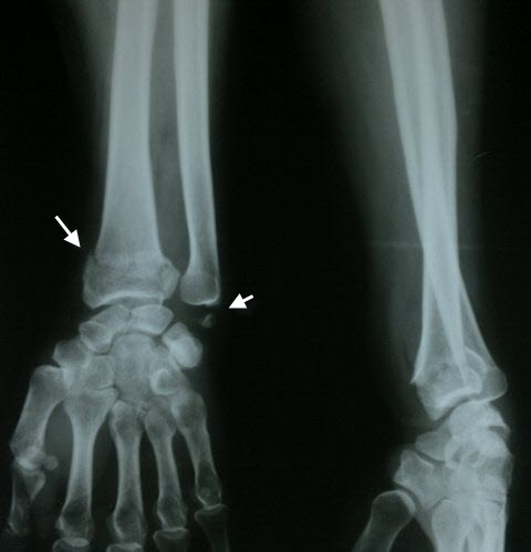 Fracture Distal Radius With Fracture Ulnar Styloid
