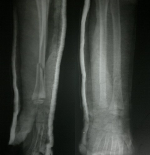 Radius Ulna Fracture In Child With Plaster In Situ
