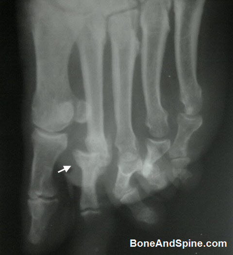Diabetic Foot WIth Dislocation of Second MTP Joint