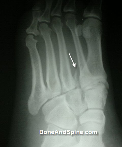 Lisfranc fracture dislocation second metatarsal