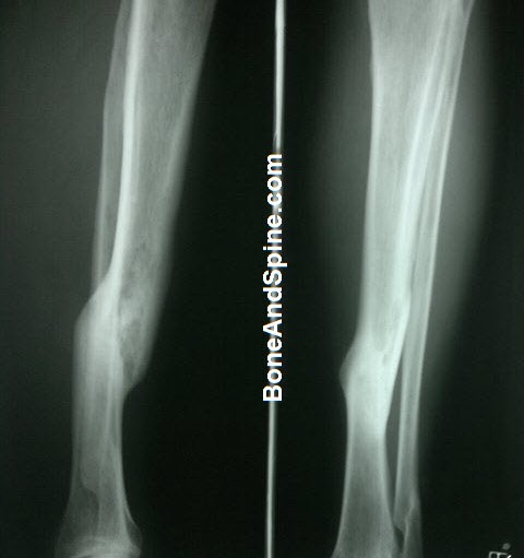 Displaced United Fracture Tibia and Fibula