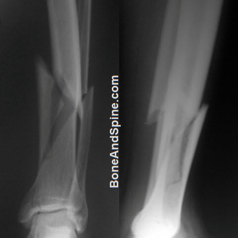 Radiographs showing Comminuted Fracture of Lower End Tibia With Fracture of Fibula
