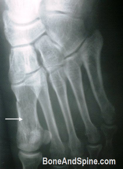 Fracture First Metatarsal Shaft