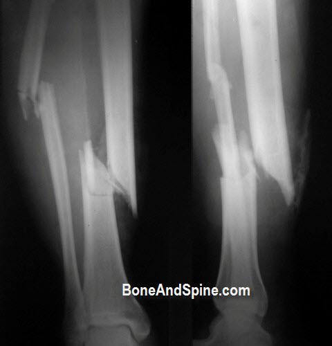 Open Fracture Tibia and Fibula