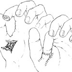 Fingertip Injuries of The Hand
