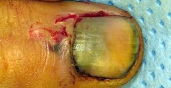 Fingernail Injuries