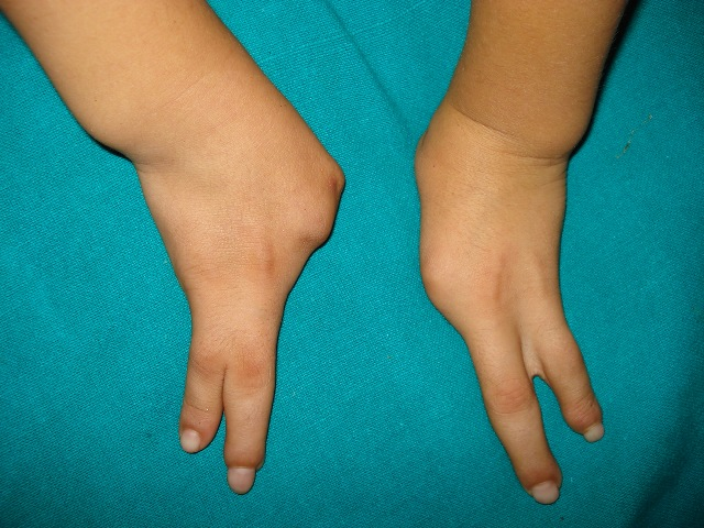 Ectrodactyly in both hands