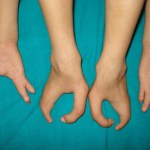 Ectrodactyly hands and feet together