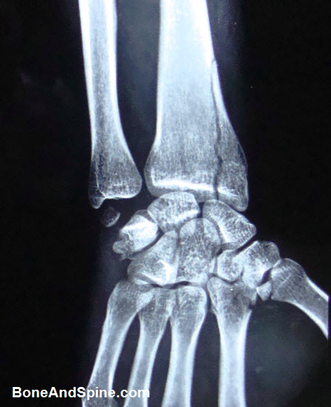 Wrist Injuries X-rays and Photographs   Bone and Spine