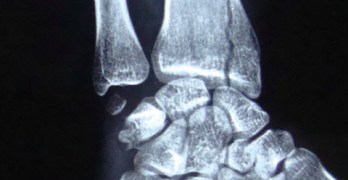 Wrist Injuries X-rays and Photographs