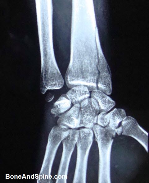 Vertical Fracture Distal Radius