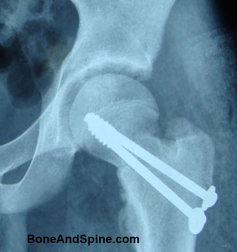 United Fracture Neck of Femur With Cannulated  Screws in Situ