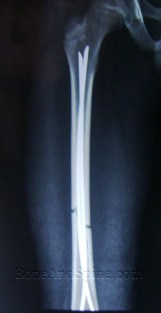 Fracture Treated with Closed Reduction and TENS