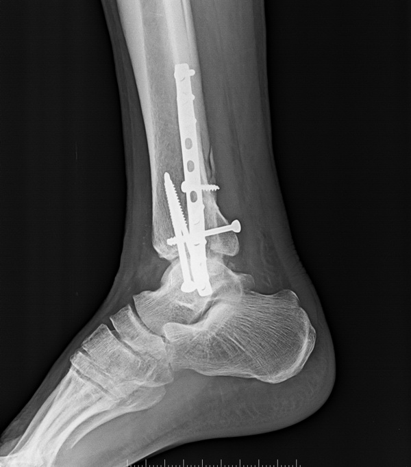 LAteral xray of ankle showing operated fracture bimalleolar.