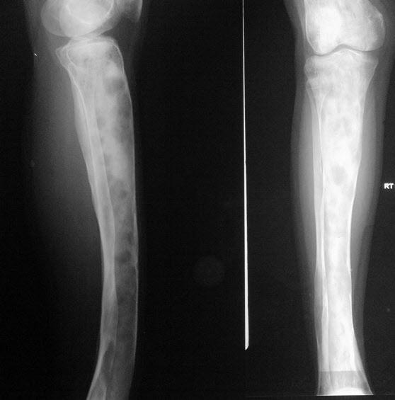 Fibrous Dysplasia Tibia