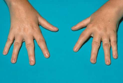 systemic-juvenile-idiopathic-arthritis