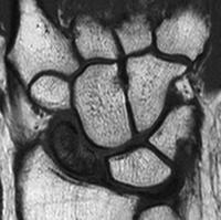 MRI image of Preiser