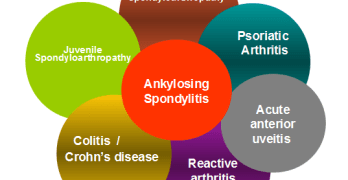 Seronegative Spondyloarthropathies
