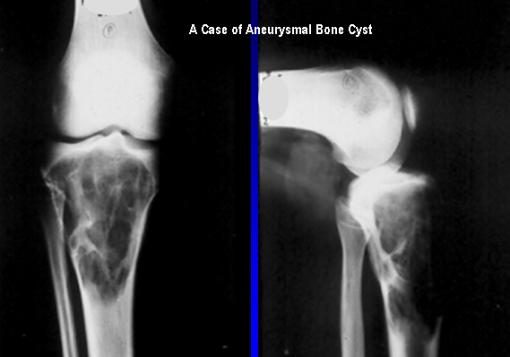 A case of aneurysmal bone cyst for curretage and bone graft
