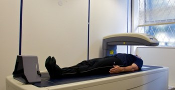 DEXA Scan or Dual-energy X-ray Absorptiometry