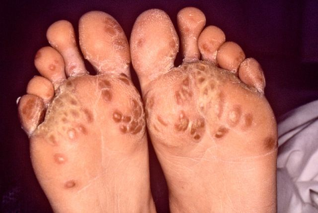 Keratoderma blennorrhagicum