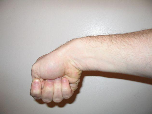 finkelstein-test-de-quervain-tenosynovitis