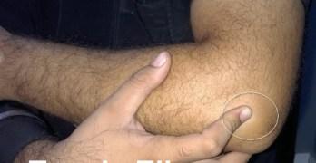 Tennis Elbow or Lateral Epicondylitis