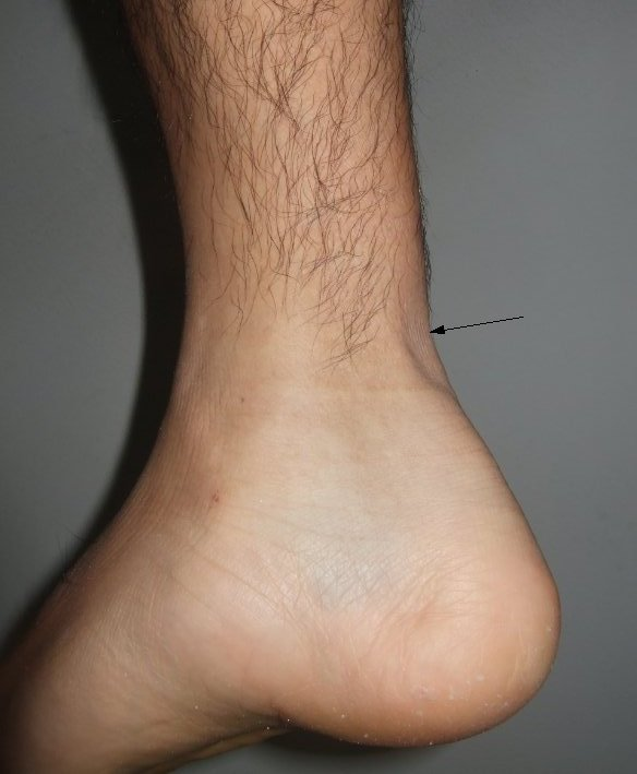 Achilles-tendon-rupture and gap is seen