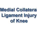 Medial Collateral Ligament Injury Image