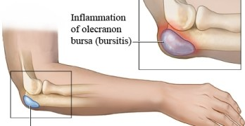 Bursa Anatomy and Significance