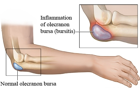 Norma Olecranon Bursa and Inflamed Olecranon Bursa or Bursitis